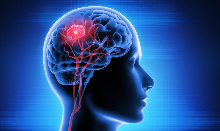 brain-tumor-doctor-in-st-louis-missouri